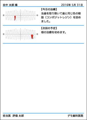 20160531_164925_2